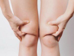 5 самых эффективных способов убрать жир с коленей